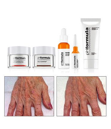 treatment-hands