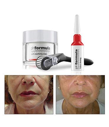treatment-wrinkle-cure